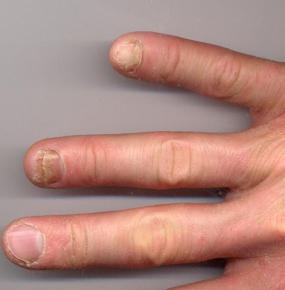 acrylic nail fungus